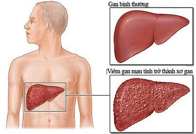 Tìm hiểu các bệnh về gan