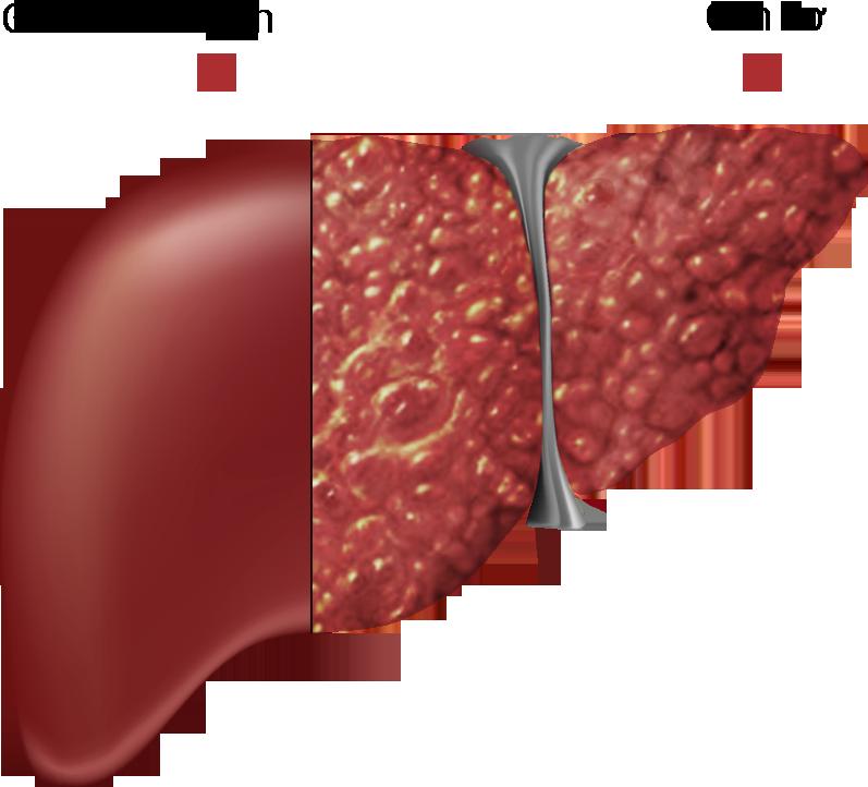 Bệnh xơ gan- nguyên nhân và cách phòng chống