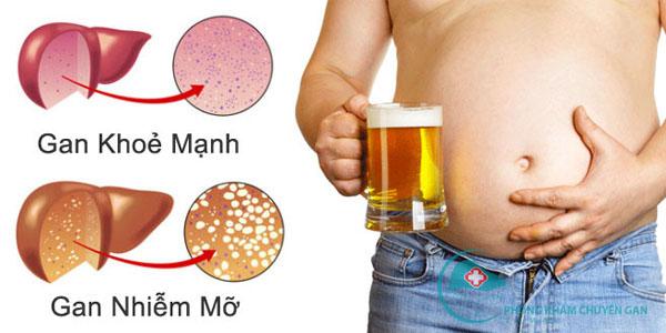 Gan bị phá hoại bởi rượu bia