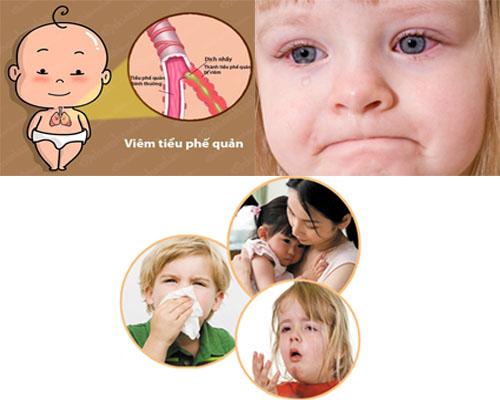 Các bệnh viêm nhiễm thường gặp ở trẻ
