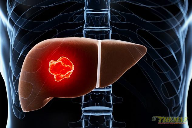 Chế độ ăn uống sinh hoạt trị nóng gan