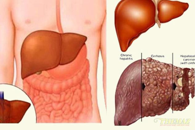 Bệnh về gan do đâu?